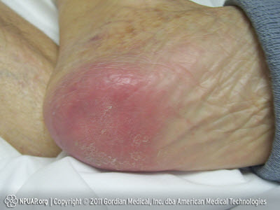 Warning Images Of Pressure Sores Graphic